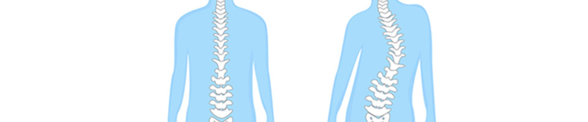 skoliosebehandlung-physio-pyrbaum-header